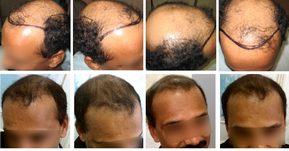 Help Hair How Accelerated Follicular Restoration™ AFR™ Reduces the Length of the Telogen -Dormancy Phase after a Hair Transplant